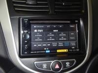 Фотография установки магнитолы Sony XAV-62BT в Hyundai Solaris
